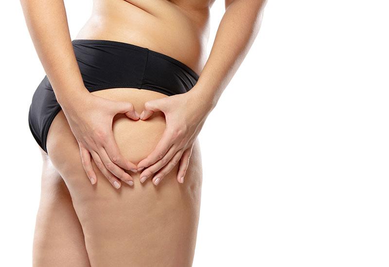Goya Anticellulite è un utilissimo termo-gel, la cui azione è rivolta direttamente all'eliminazione della cellulite, che spesso colpisce la pelle delle donne.