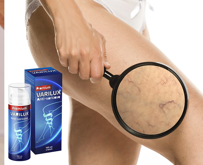 Varilux si applica direttamente sulle gambe, agendo quasi immediatamente ed aiutando a ridurre il volume dei vasi sanguigni e riassorbire i noduli.