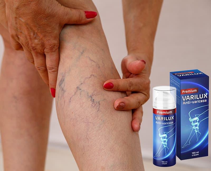 La crema Varilux va applicata direttamente sul punto d'interesse, almeno due volte al giorno e per circa un mese consecutivo.